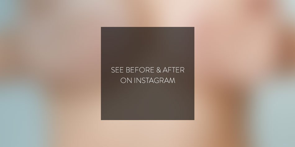 See before & after on Instagram